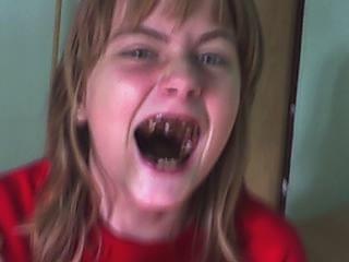 śmieszny człowiek #wieśniak #wieśniara #popsute #zęby #śmieszne